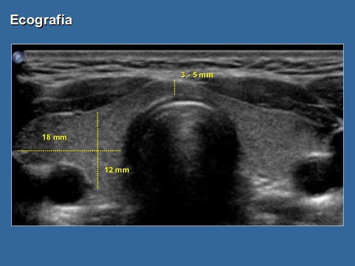 eco-tiroidea